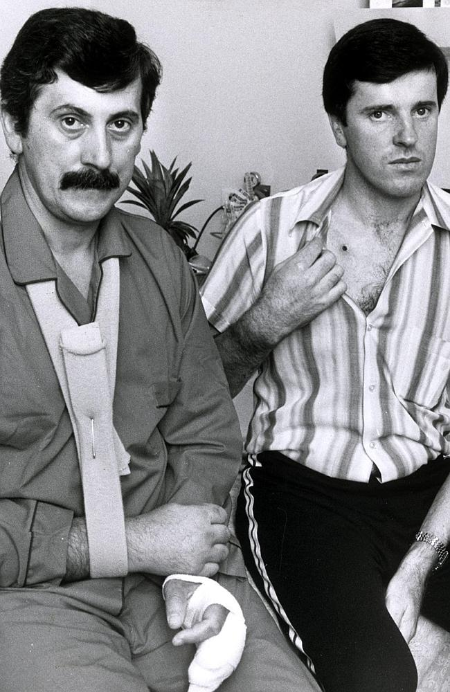 Kapetanovski (left) and MacDonald (right) show their gunshot injuries. Picture- Photo File