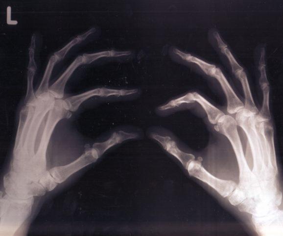 С времето броят на костите се редуцира. Снимка: Asja. via Foter.com / CC BY