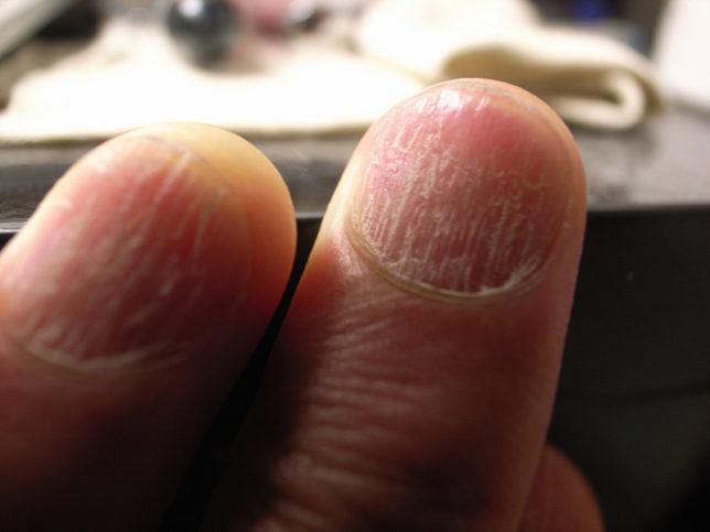 Нужни са около 6 месеца за възстановяването на паднал нокът. Снимка: matsuyuki via Foter.com / CC BY-SA