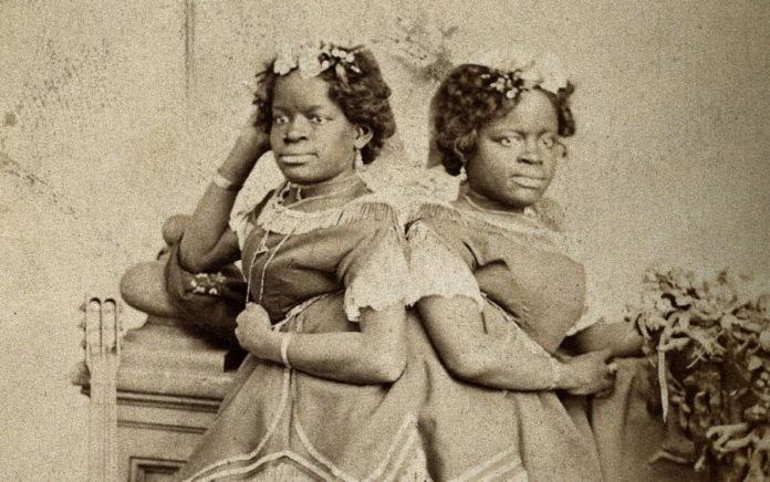 Близначките от Каролина сиамските близначки