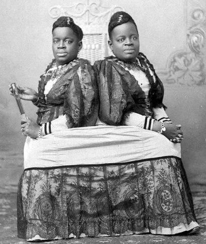 сиамските близначки